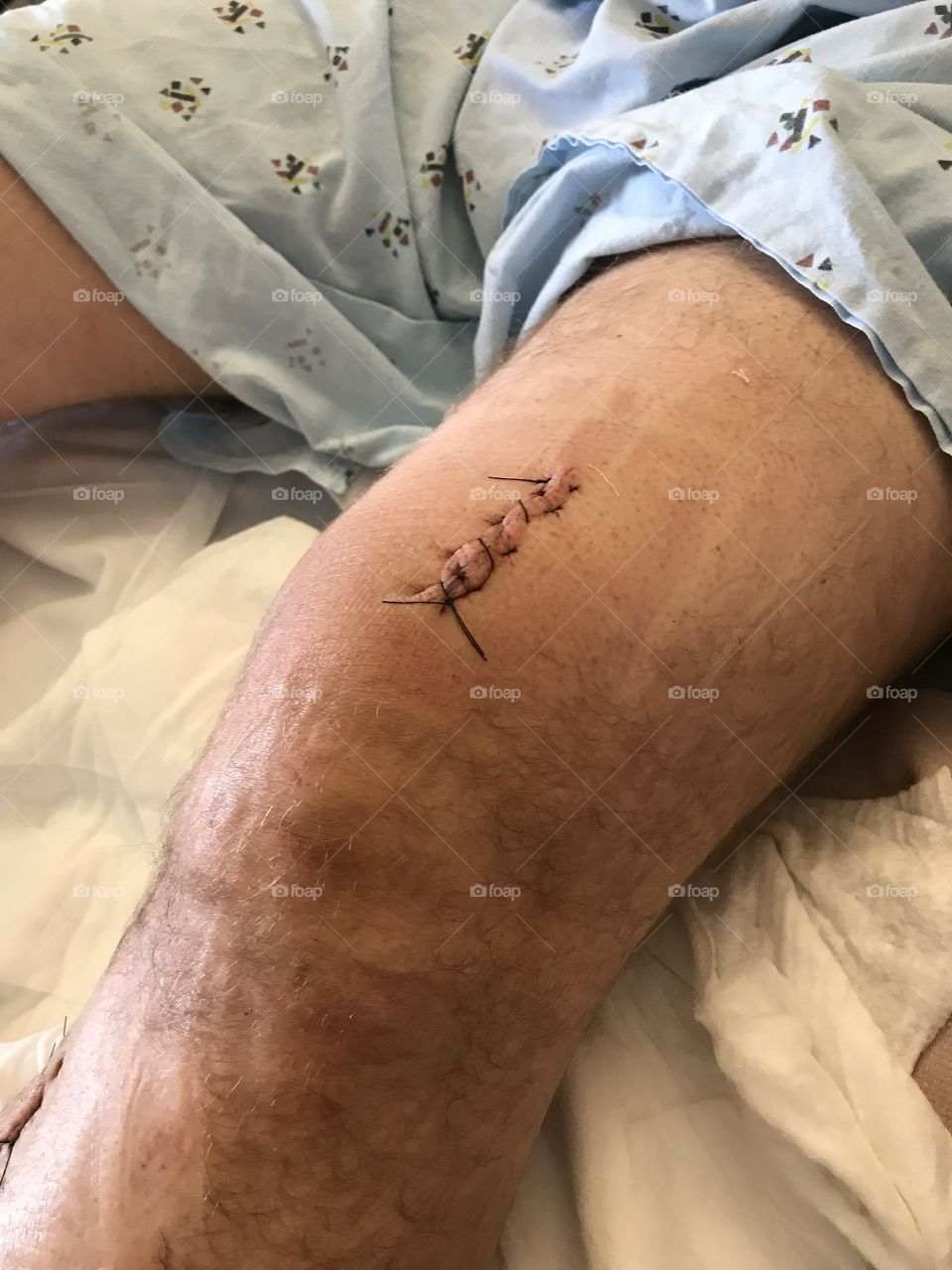Stitches above the knee
