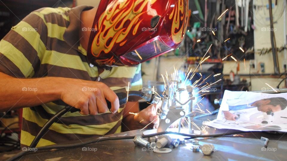 welding ophthalmologist