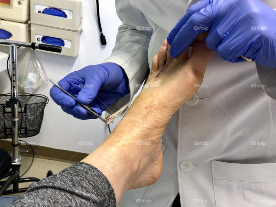 A Morton's Neuroma surgical patient at a post-op appointment as the doctor removes the bandaged to check the incisions.