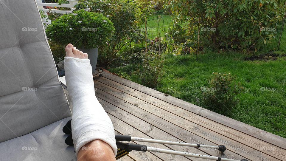 Short leg cast  foot surgery - gips underben fotoperation